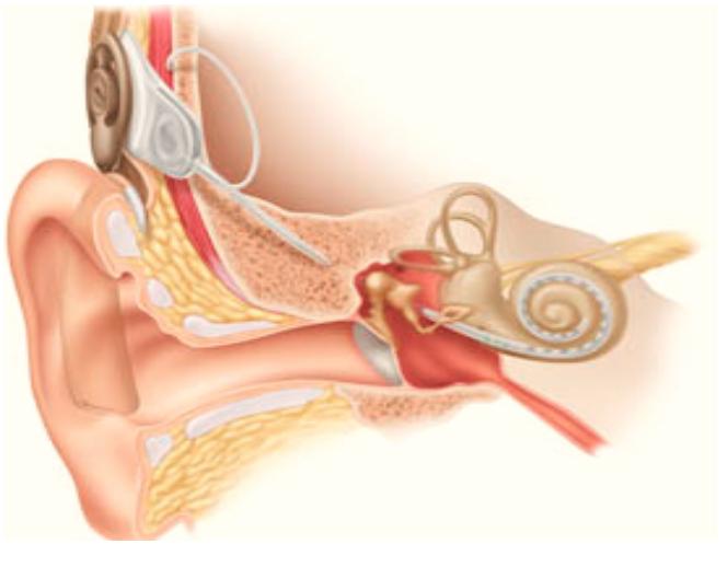 Biyonik Kulak (Koklear implant) Nedir? - Kimlere Uygulanır?, Biyonik kulak ameliyatı her kulağa uygulanabilir mi?, biyonik kulak ameliyatı...